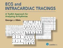 Ecg And Intracardiac Tracings