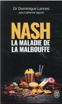 Nash : La Maladie De La Malbouffe
