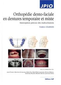 Orthopedie Dento-faciale En Dentures Temporaire Et Mixte ; Interception Precoce Des Malocclusions