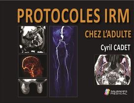 Protocoles Irm Chez L'adulte