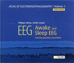 Atlas Of Electroencephalography V.1 ; Awake And Sleep Eeg (3e Edition)
