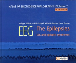 Atlas Of Electroencephalography V.2 ; The Epilepsies, Eeg And Epileptic Syndromes (2e Edition)
