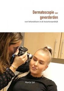 Dermatoscopie voor gevorderden