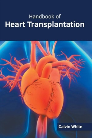 Handbook Of Heart Transplantation