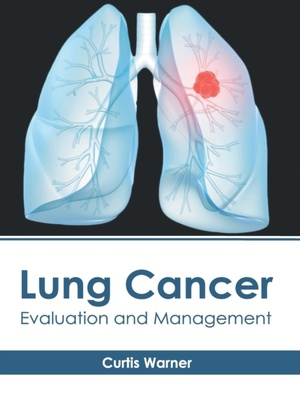 Lung Cancer: Evaluation And Management