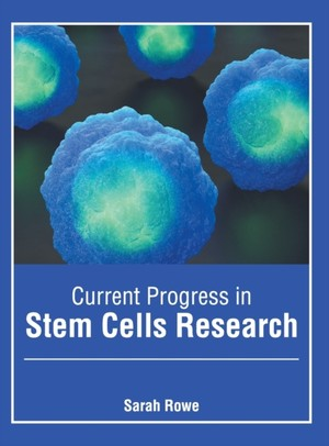 Current Progress In Stem Cells Research