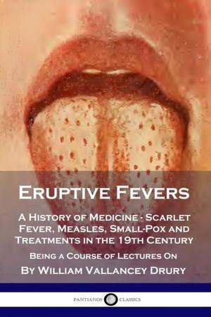 Eruptive Fevers