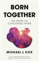 Born Together: The Story Of Conjoined Twins