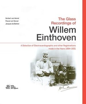 The Glass Recordings of Willem Einthoven