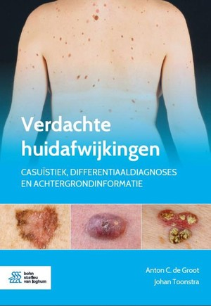 Verdachte huidafwijkingen